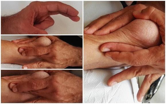 Terapia Manuale massaggio trasverso profondo